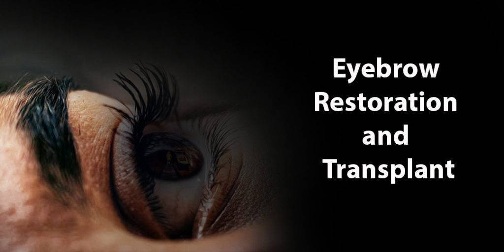 Eyebrow Transplant Malaysia