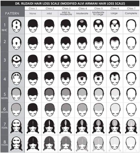 Hair Loss Scale Malaysia